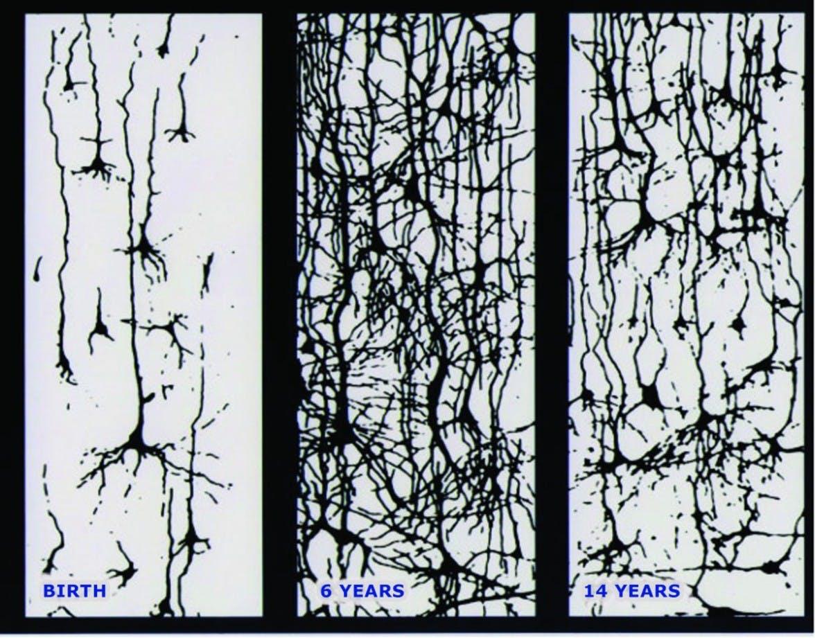The postnatal development of the human cerebral cortex.